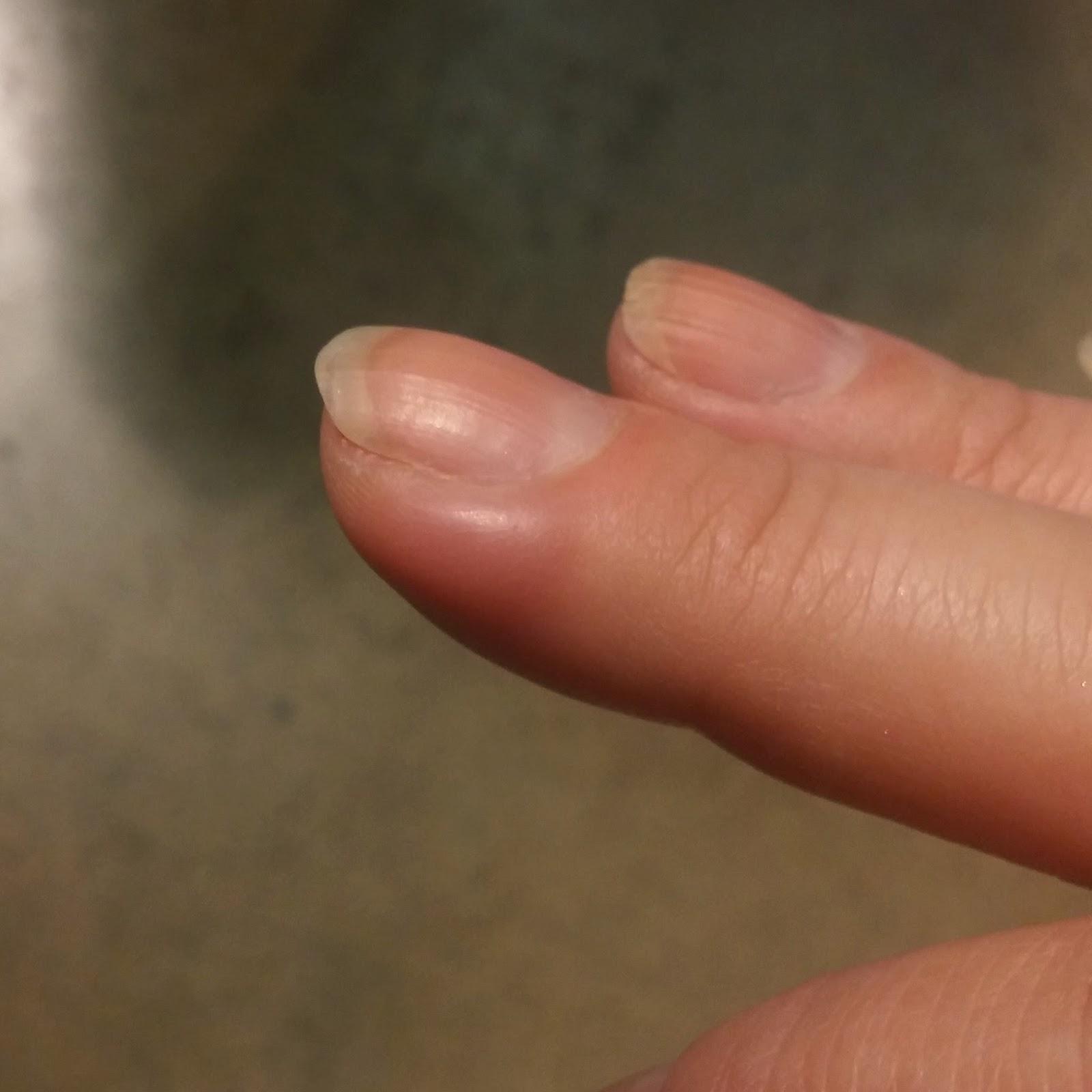 """Älä """"nukahda"""" sormi kynsilakanpoistoainepurkissa tai voi seurata mätäpaise!"""